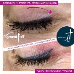 eyeliner-11-permanent-make-up-remover-pigment-off-1