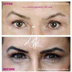 removal_of_the_black_eyebrows-pmt_healed_result_after_several_sessions_pigment-off-remover_1_20170702_1035967465